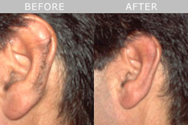 permanent hair removal on ears and nostrils