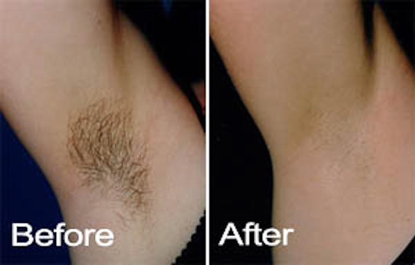 permanent hair removal for woman