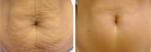 RF for cellulite and fat reduction